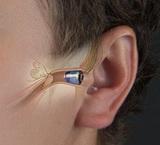 智隐9 LS9IIC隐形助听器